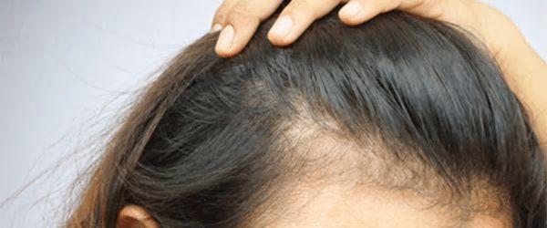 scalp rejuvenation